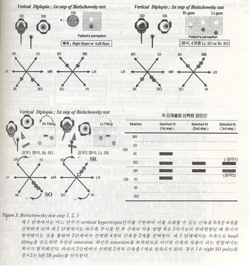 medicine    bielschowsky test step 1 2 3